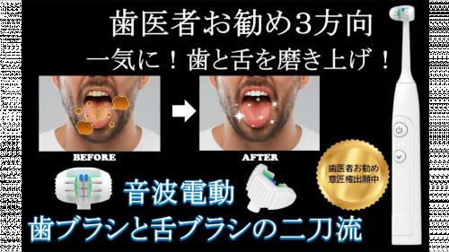 3面音波電動歯ブラシと舌ブラシが一体化!3方向から一気に磨き上げて清潔な歯と舌に